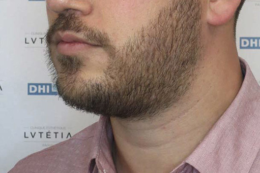 Implant barba - LookClinic