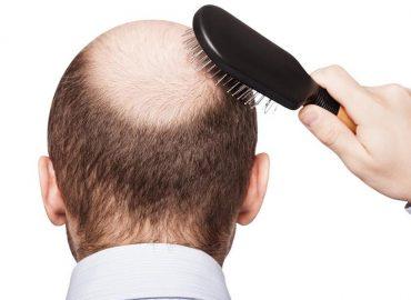 Cădere timpurie? Trei semne ale alopeciei