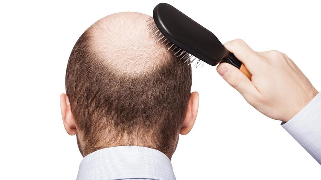 Chelia masculină este genetică şi apare imediat după adolescenţă. Care sunt cauzele alopeciei la femei şi ce soluţii există
