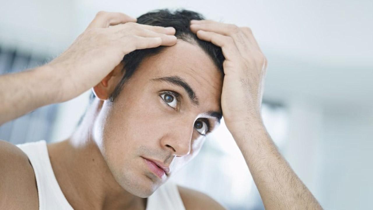 Implantul de păr la bărbaţi: cum se face şi în cât timp se văd rezultatele?