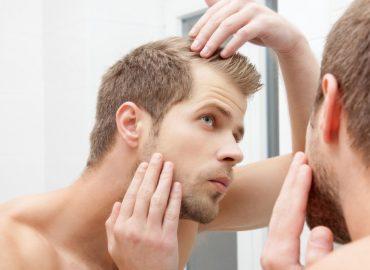 Cât de sigur este şi cât costă un implant de păr