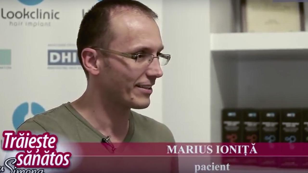 Implant de par Marius Ionita, Dr Panagiotis Vogiatzis la Traieste sanatos cu Simona