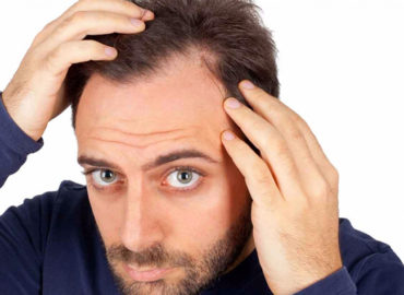 Transplantul de păr. Ce procedură să aleg? La ce rezultate să mă aștept?