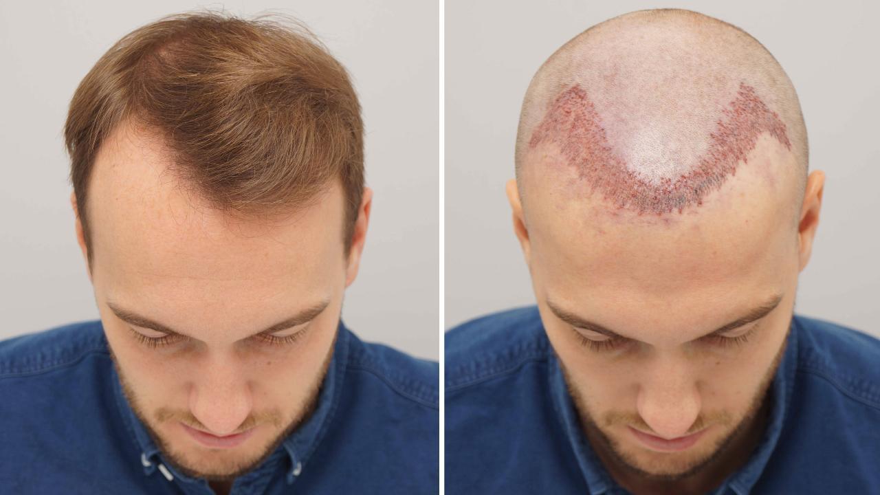 Este spălarea pe cap interzisă în primele zile după transplantul de păr? Sfaturi de îngrijire post-procedură