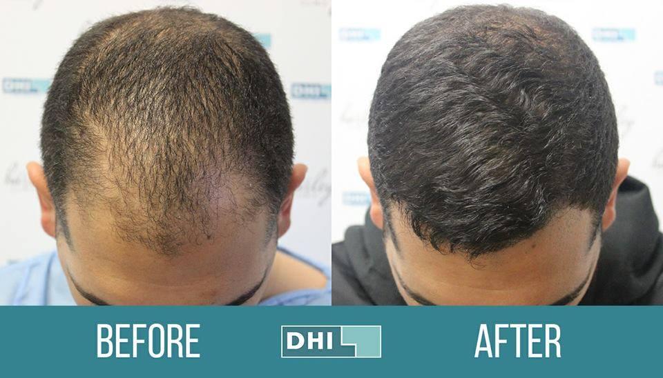 E cazul să îmi fac transplant de păr? Oare nu creşte la loc dacă pun un serum revitalizant?