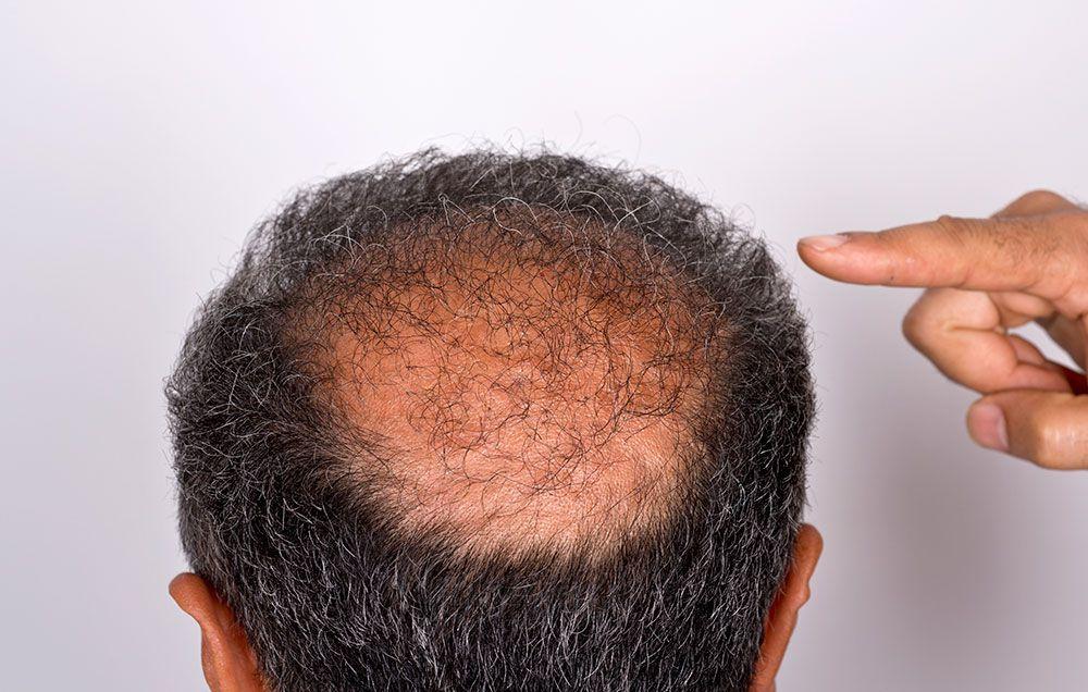 Ce putem face pentru a stimula creşterea părului? Efectul regenerator cu mare impact