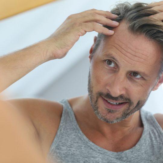 Studiu JAMA: bărbaţii care şi-au făcut implant pe păr sunt percepuţi ca fiind mai atrăgători şi de succes
