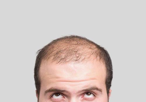 5 aspecte de luat în seamă înainte de efectuarea procedurii de implant de păr