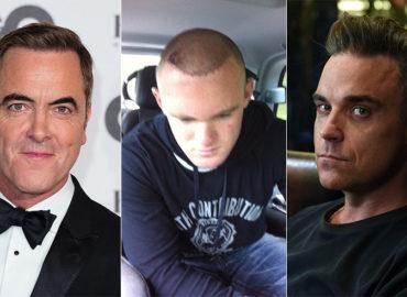 Cazuri celebre de implant de păr. De ce crește numărul intervențiilor
