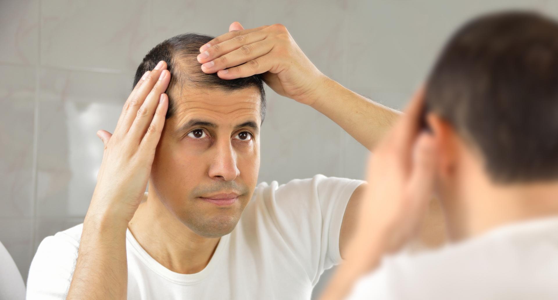 Cât e normal să cadă părul? Unde începe îngrijorarea?