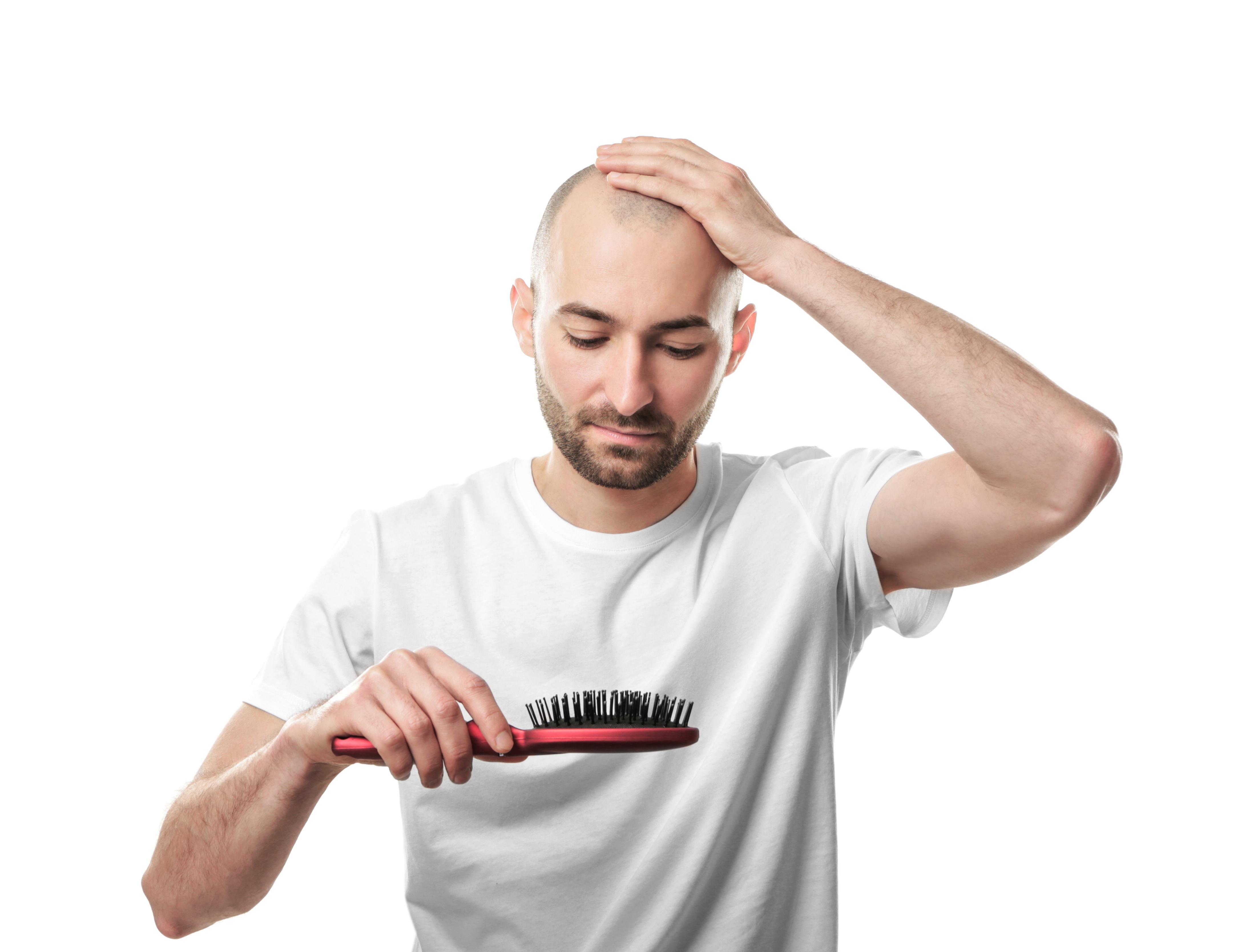 Pot folosi părul altcuiva pentru implant? Va cădea tot părul implantat?