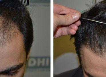Transplantul de păr. Ce face Lookclinic diferit?