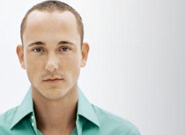 Ce faci dacă părul cade încă de la 20 de ani? Este posibil implantul de păr?