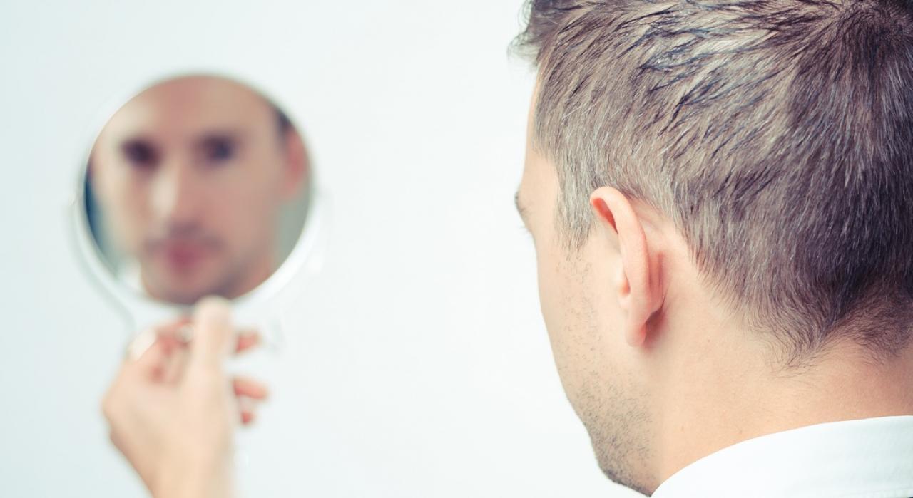 De ce să fac implant de păr în țară: 3 motive esențiale